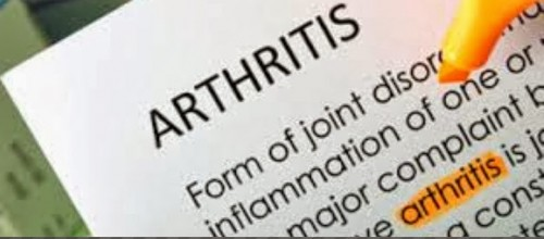 Is Arthritis Affecting Your Life?